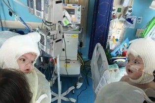 Что ждет сиамских близняшек из Черновцов: примеры успешных операций в мире