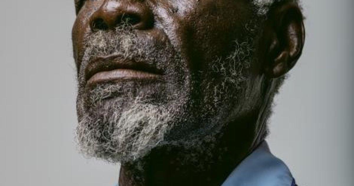 67-річний Герд Гаманаб звернувся за медичною допомогою надто пізно: роки праці під намібійським сонцем і пил знищили його рогівку очей. Його сліпоті, ймовірно, можна було б запобігти @ national geographic