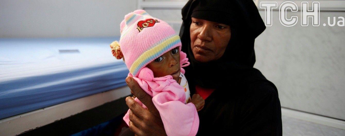 В Йемене может начаться страшный голод из-за блокады