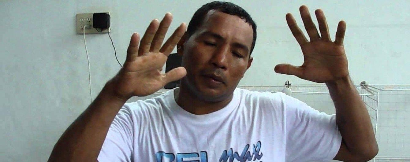 Колишнього чемпіона світу з боксу побили на автозаправці в Нікарагуа