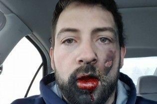 У американца вылетели зубы из-за взрыва электронной сигареты во рту