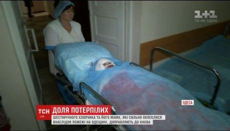 Пострадавших в пожаре в Одессе мать и сына доставили в Киев