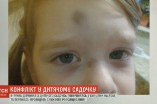 Виховательку київського дитячого садка підозрюють у побитті 4-річної дитини