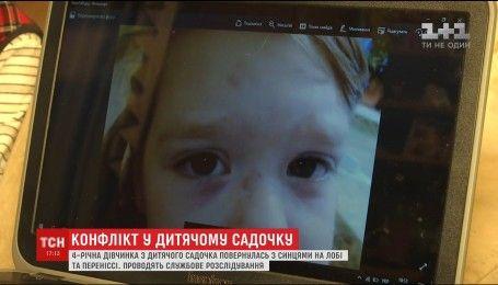 Методи виховання: батьки 4-річної дівчинки звинувачують виховательку в побитті дитини