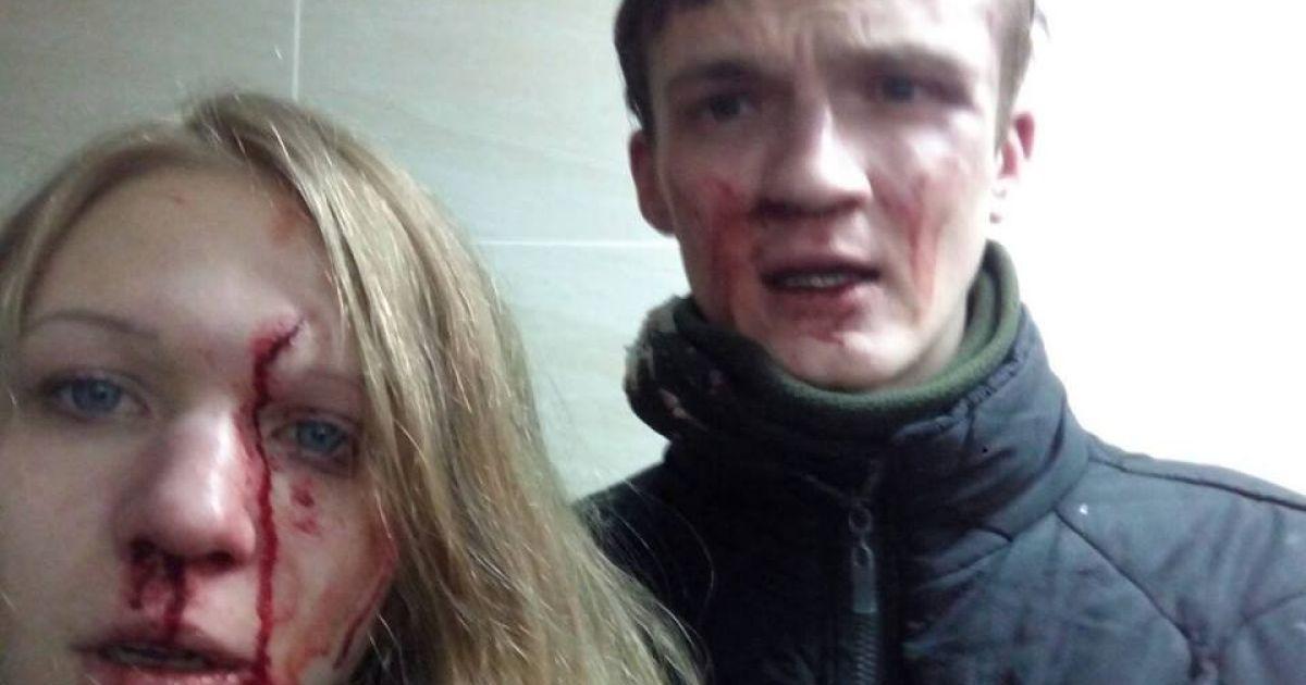 Віта Заверуха та її хлопець звинуватили націоналістів у кривавому побитті