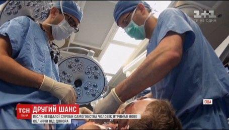 Американські хірурги дві доби пересаджували чоловікові обличчя
