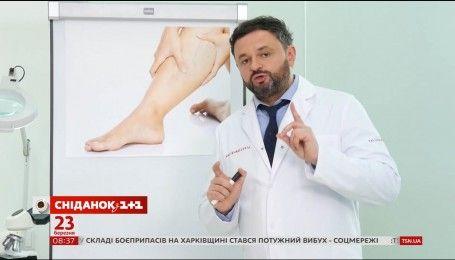 Поради доктора Валіхновського: що варто знати про варикозну хворобу