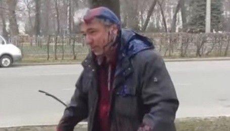 У Полтаві депутату міськради облили голову фарбою