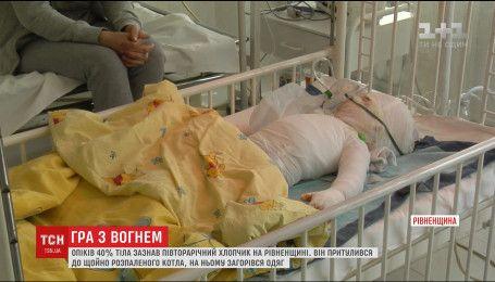 Состояние малыша, который едва не сгорел заживо на Ровенщине, остается крайне тяжелым