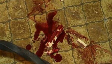 У Миколаєві ветерани АТО побилися із афганцями