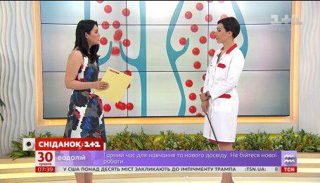 Говорим о варикозе с терапевтом Татьяной Аникеевой