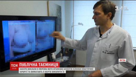 Хакери РФ оприлюднили фото оголених клієнтів литовської клініки пластичної хірургії