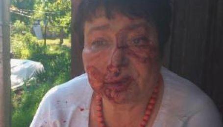 На Киевщине на заказ жестоко избили председателя ТИК Коцюбинского
