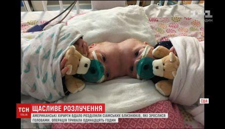 Хирурги США провели 11-часовую операцию, чтобы разделить сиамских близнецов