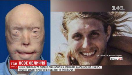 В Украине десятки людей нуждаются в пересадке лица, которая запрещена законодательно