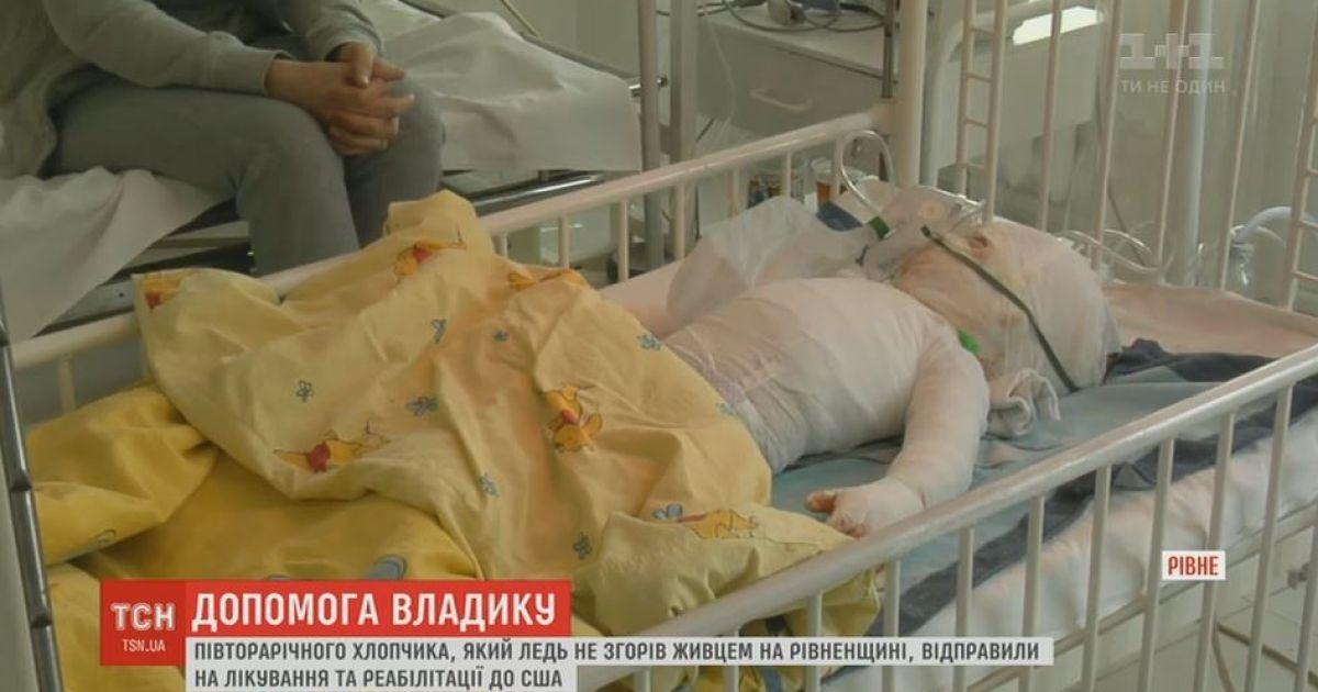 Українці назбирали кошти для порятунку обгорілого півторарічного Влада