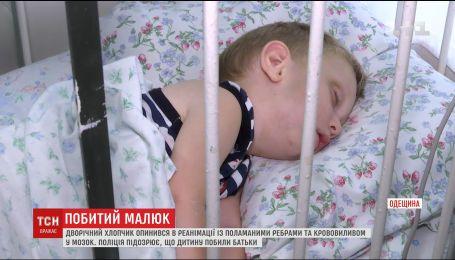На Одещине мать и отец обвиняют друг друга в избиении ребенка, находящегося в реанимации