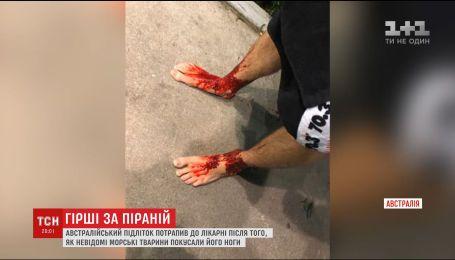 Неизвестные морские существа превратили ноги австралийского подростка в кровавое месиво