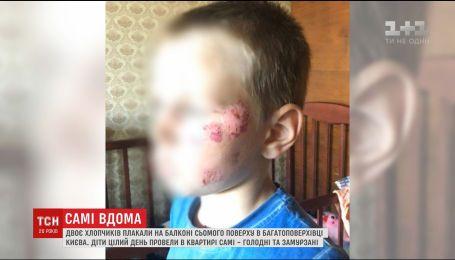 В Киеве двое голодных и грязных мальчиков целый день звали маму с балкона седьмого этажа