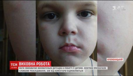 В Кропивницком открыли уголовное производство по факту избиения ребенка воспитательницей