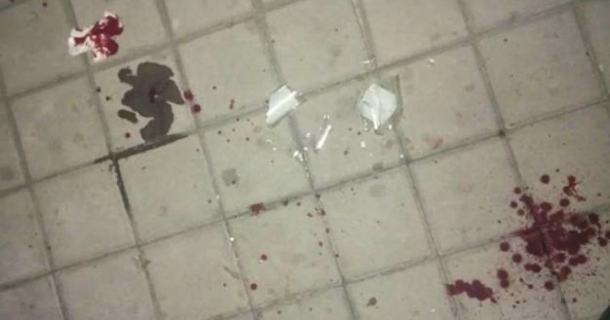В Киеве на Подоле мужчина напал с ножом на работника кафе