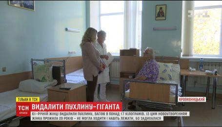 В Кропивницком женщине удалили опухоль весом более 17 килограмм