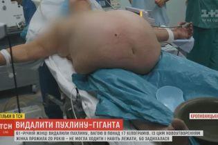 17-кілограмову пухлину видалили пацієнтці в Кропивницькому