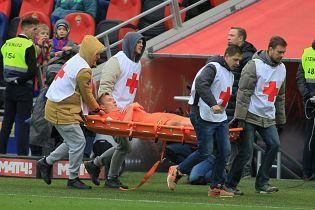 Футболіст російського клубу отримав жахливу травму