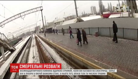 18-летний киевлянин отримав 75% ожогов тела, когда катался на крыше электрички
