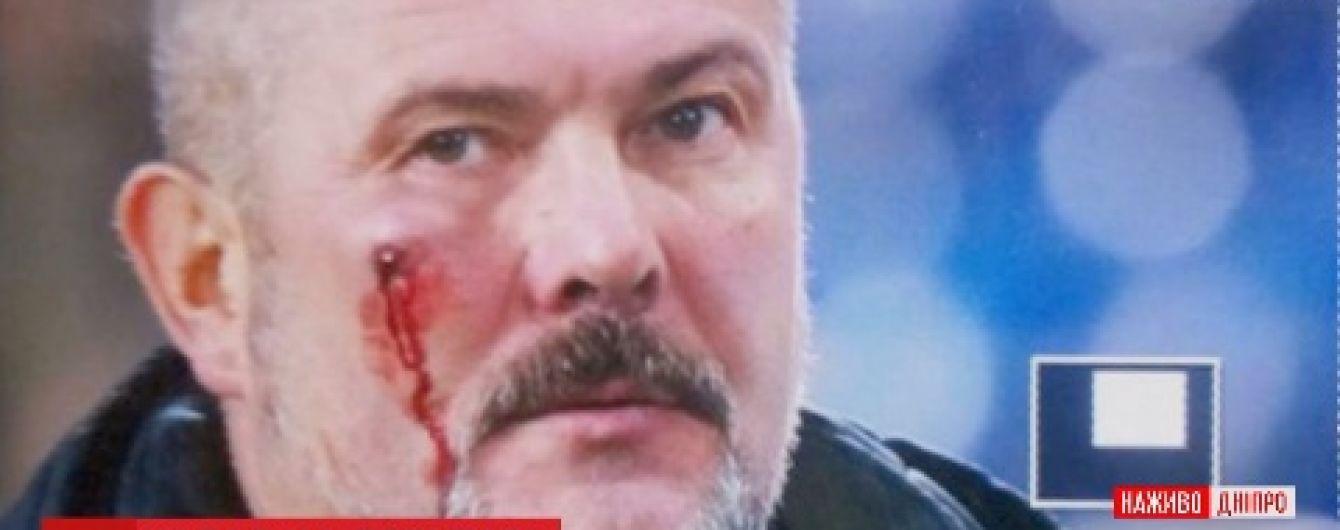 В Днепре во время футбольного матча разбили лицо нардепу Березе