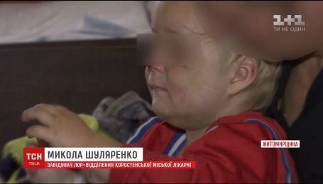 """На Житомирщині мама зламала дворічному синові носа, бо той """"вередував"""""""