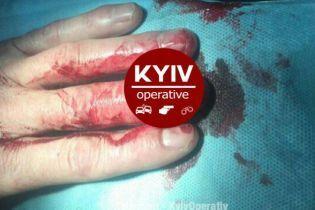 В Киеве неизвестные дважды выстрелили в водителя такси