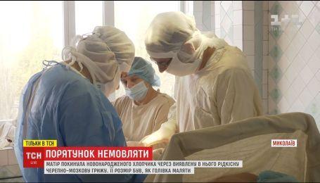 Врачи из Николаева вырезали брошенному младенцу редкую черепно-мозговую грыжу
