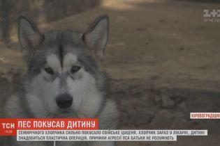 На Кировоградщине пес напал на 7-летнего хозяина во время игры