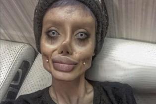 Буду как Джоли или Кен с Барби. Истории людей, которые шокировали изменениями своей внешности