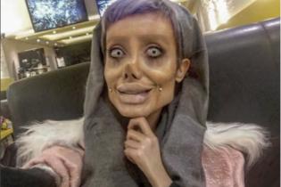 """Иранская """"Джоли"""": в Сети заинтересовались правомерностью действий пластических хирургов"""
