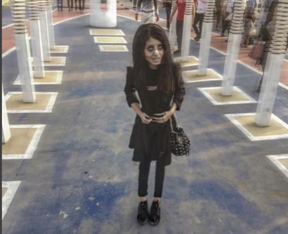 Дівчина перенесла 50 операцій, щоб бути схожою на Джолі_3