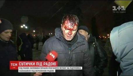Полиция попыталась разогнать митингующих под Верховной Радой, есть раненые