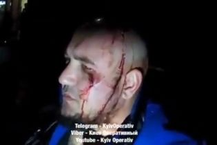 У Києві біля піцерії сталася масова бійка з перестрілкою