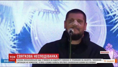 Очільник Миколаївщини відкрив ялинку із розбитим обличчям