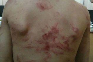 Била так, що все тіло червоне. У Вінниці жінці загрожує ув'язнення за побиття 7-річного сина