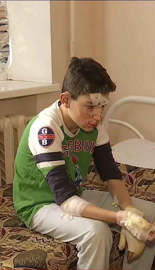 В Никополе двое подростков пострадали от взрыва петарды