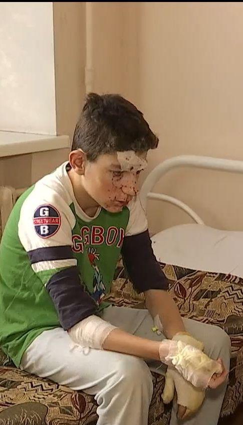 В Нікополі двоє підлітків постраждали від вибуху петарди