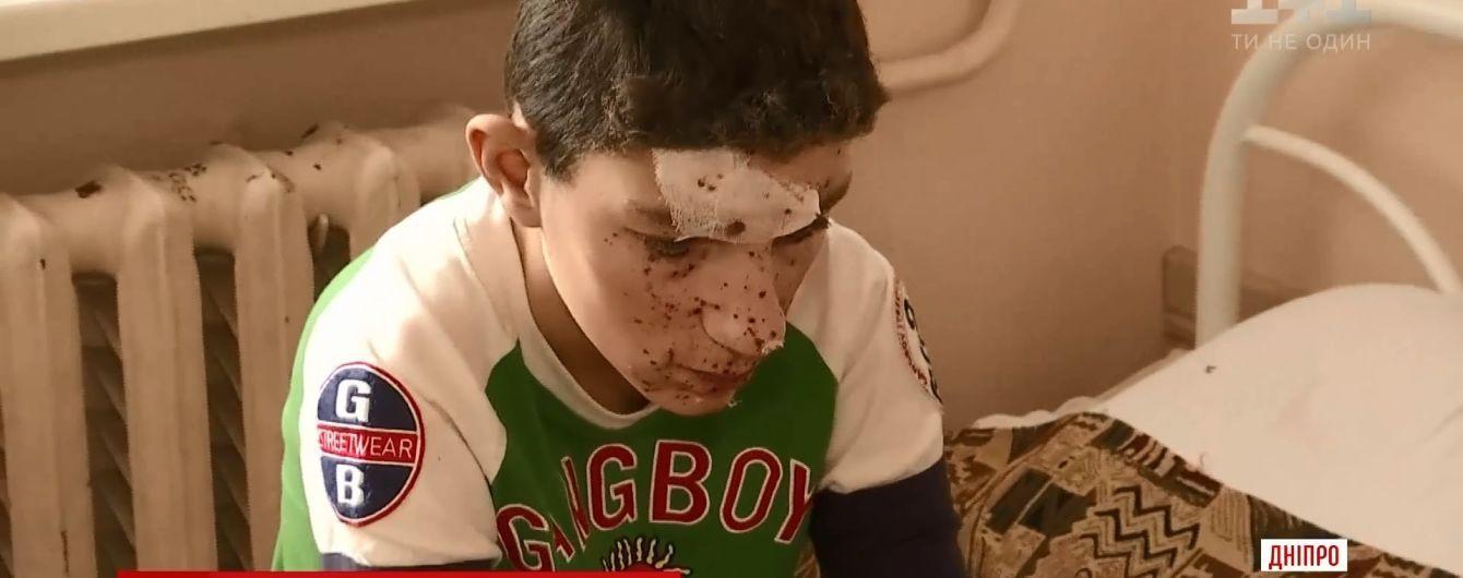 В Никополе дети получили тяжелые травмы от петарды, которую нашли на помойке