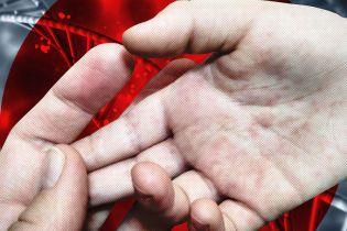 На Львівщині за тиждень на кір захворіли майже півтисячі осіб