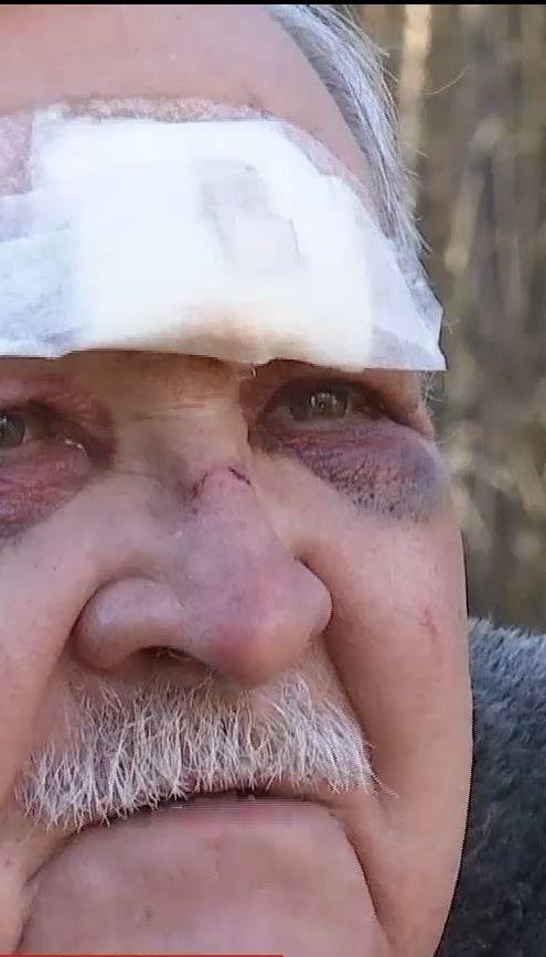 Злоумышленники ворвались в дом и избили экс-полковника милиции на Киевщине