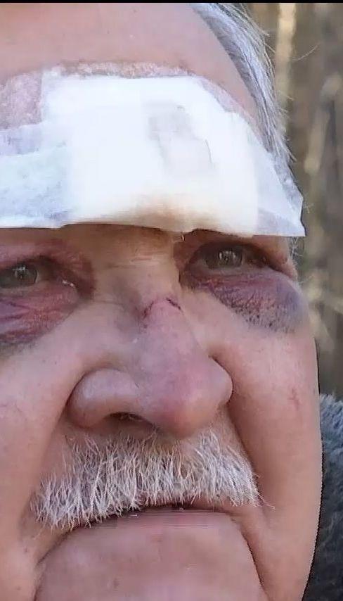 Зловмисники вдерлись до будинку та побили екс-полковника міліції на Київщині