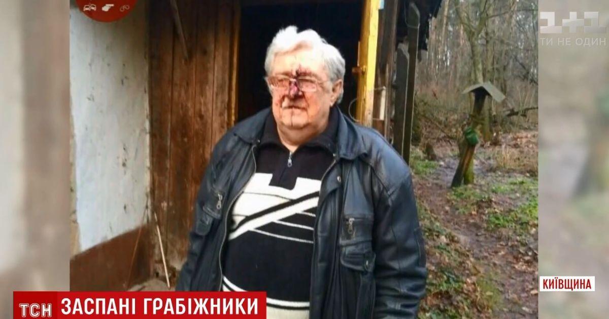 На Киевщине родственники жестоко избили полковника милиции и заснули на месте преступления