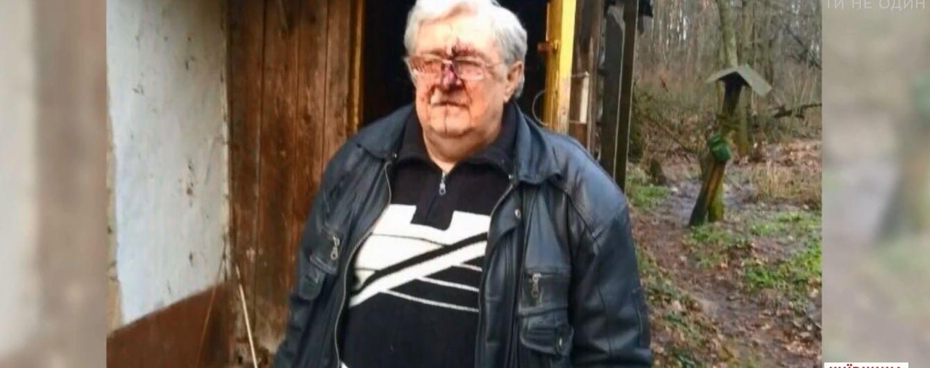 На Київщині родичі жорстоко побили полковника міліції та заснули на місці злочину