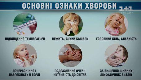 Що варто знати про кір: симптоми, динаміка та ускладнення хвороби